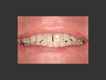 Gaps: This gap was closed with the use of a clear retainer that moved the teeth together. The retainer was worn for a few short weeks, but what a big difference this small change made in the patient's overall smile.