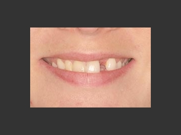 Gaps: This patient had a missing lateral incisor from childhood. It was replaced with an all-ceramic bridge. The teeth on the other side of the smile were restored with porcelain veneers so they would match in color, shape and texture with the bridge.