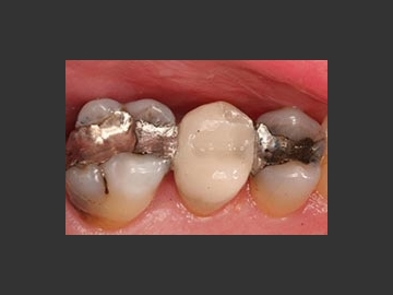 Cerec - Onlays, crowns:  The above CEREC porcelain restoration procedures took approximately 80 minutes from start to finish, and there were no follow-up visits!  The material used has similar physical characteristics to enamel, the hard outer shell of your teeth ...